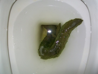 abnormal green feces in adult